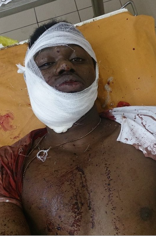 Zambian students attacked in Russia, again