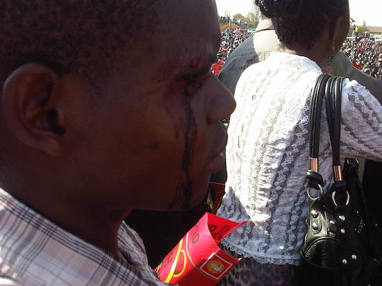 HH assures civil servants they won't lose jobs, as PF thugs attack supporters