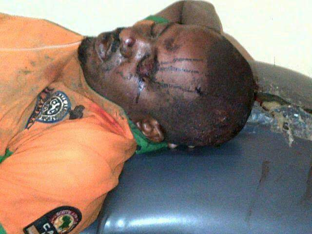 Zambian attacked in SA, as police ban protests in Lusaka