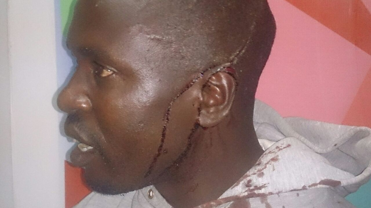 Photo of the day: PF thugs slice ear of UPND member