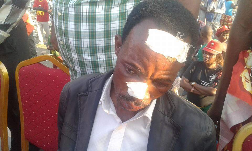 UPND supporters hacked on way to Matero rally