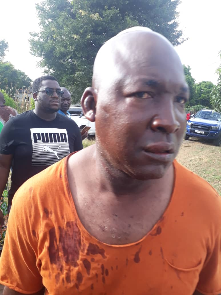 PF thugs attack opposition polling agents