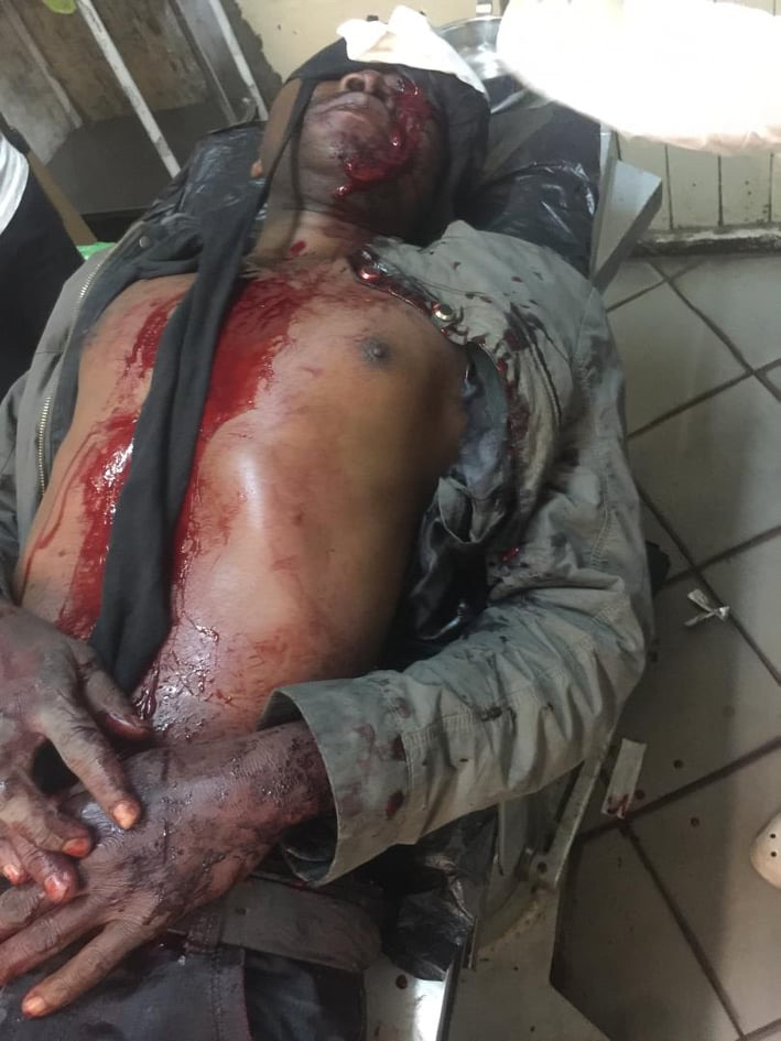 Criminals pluck out security guard's eye