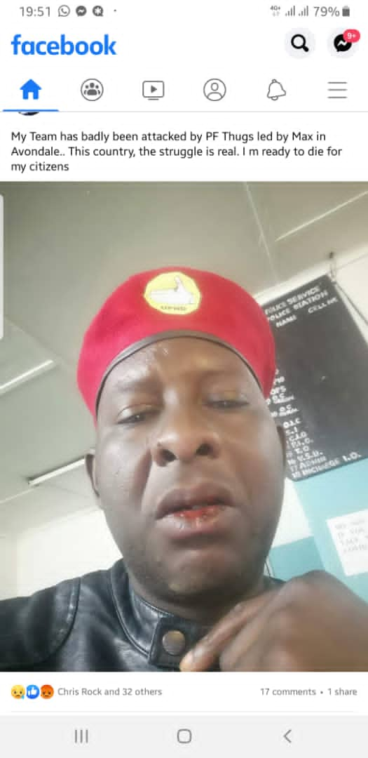 PF cadres beat up UPND members in Avondale